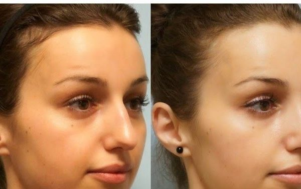 Easy Methods To Be Taught Every Part About Round Nose